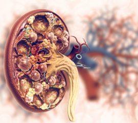 rinichi afectati