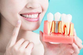 Implantul dentar, între rol și beneficii