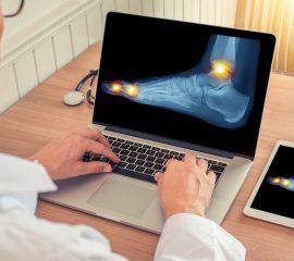 sistem osteoaticular