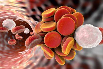 Tromboembolismul venos – tipuri, simptome si tratament