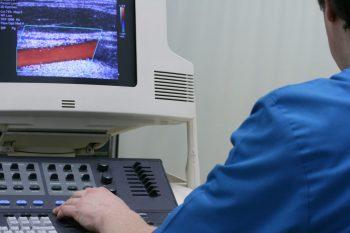 Sonoelastografia si ecografia Doppler, esentiale in diagnosticul diferential al nodulilor