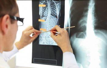 New insights in bone tissue engineering