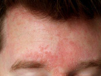 Dermatita seboreica – diagnostic si metode de tratament