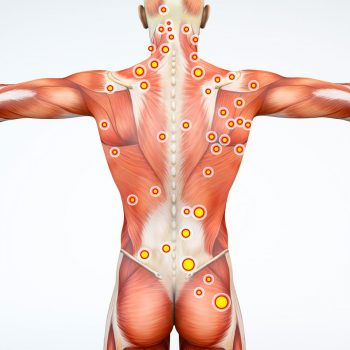Bandeleta iliotibiala – simptome, diagnostic si tratament