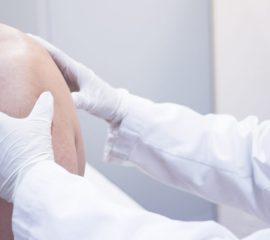sindromul-coafei-rotatorilor-privire-de-sinteza