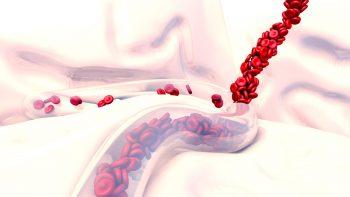 Primul ajutor în hemoragii: note pentru activitatea practică de teren