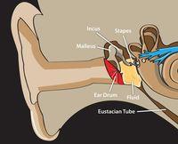 Fig.1 Otita seroasa (lichid in urechea medie) schematic_result