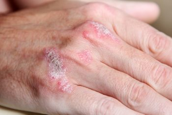 Afecțiuni dermatologice frecvent întâlnite la pacienții geriatrici