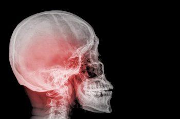 """Conferința """"Traumatismele craniofaciale ṣi cervicale – abordare diagnosticǎ ṣi terapeuticǎ"""", 06-07 octombrie 2017"""