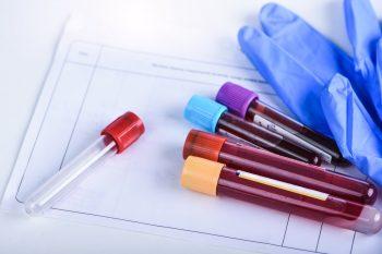 Bolile hematologice la copii și adulți