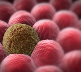 Resveratrolul-posibil-aliat-în-terapia-antitumorală