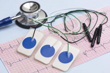 Modificări electrocardiografice la sportivi