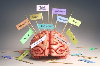 Cercetătorii susțin că există bacterii și în creierele oamenilor!