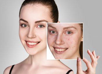 Tratamentul topic al acneei ușoare și moderate