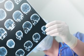 Glioblastomul, o tumoră cu prognostic rezervat
