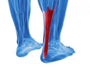 Leziunile traumatice ale tendonului ahilean: cauze și variante terapeutice