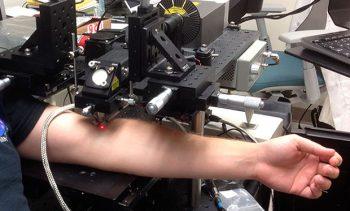 96% dintre tumorile canceroase pot fi distruse cu ajutorul laserului!