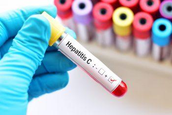 Pauză în programul fără interferon, pentru pacienții cu hepatita C