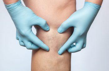 Ulcerul varicos
