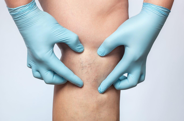 cum se vindecă rapid picioarele inflamate tipuri de ulcere la nivelul membrelor inferioare