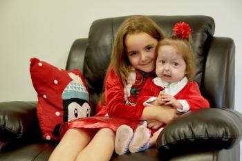 Uimitorul caz al unei fetiţe de doi ani cu o formă aberantă de displazie acro-mandibulară (VIDEO)