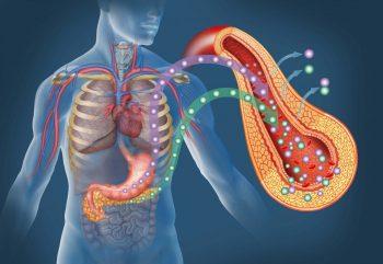 Pancreatita acută: mituri demontate