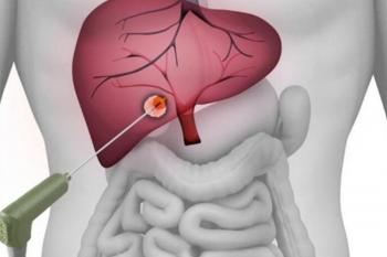 Rezecția chirurgicală a metastazelor, o şansă pentru pacienţii cu cancer