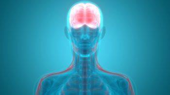 Encefalopatia acută necrotizantă asociată infecțiilor virale
