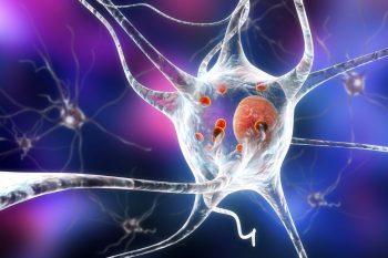 Acumularea de lipide din celulele creierului, risc de Parkinson