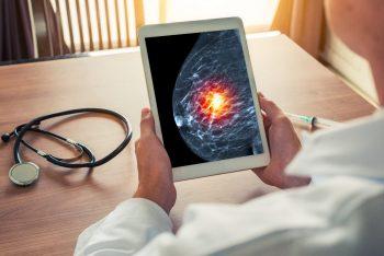 Cancerul de sân: medicamente cu rol de prevenție