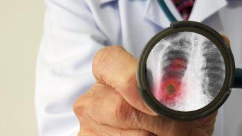 Plămânii s-ar putea regenera dacă oamenii renunţă la fumat