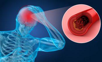 Somnul odihnitor poate reduce riscul accidentului vascular cerebral