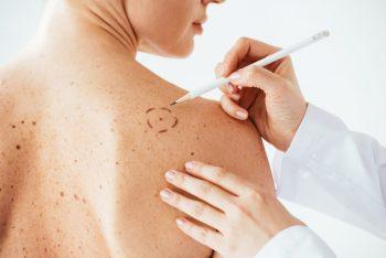 Un nou instrument în lupta împotriva melanomului