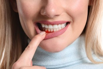 Gingivita și parodontoza – diferențe