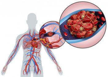 Tromboembolismul pulmonar, aspecte multidisciplinare