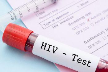 9 concepţii greşite despre infecția cu virusul HIV