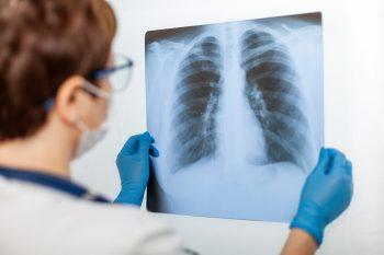 CT-ul pulmonar, factor-cheie în recuperarea post-COVID-19