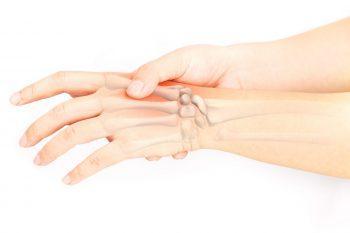 Recuperarea în rizartroză, importanța tipului de tratament ales