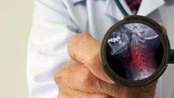 Spondiloza cervicală, o afecțiune des întâlnită cu simptome invalidante