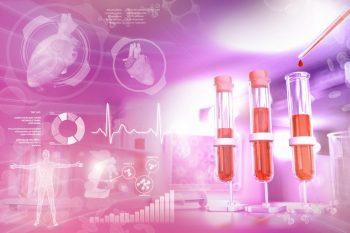 Trombocitopenia sau scăderea numărului de trombocite