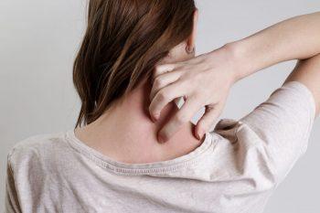 Mecanismul care stă la baza colonizării bacteriene în cazurile de dermatită atopică
