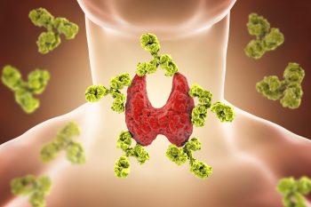 Bolile autoimune: tipuri frecvente, cauze şi simptome
