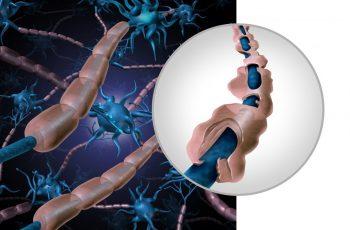 Scleroza multiplă ar putea fi tratată cu ajutorul unei noi tehnologii