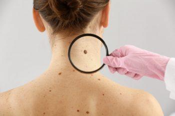 S-a descoperit un nou tratament pentru cancerul de piele