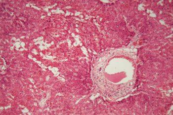 Amiloidoza, boala care pune în pericol viaţa pacientului