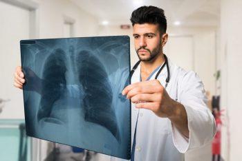 Pneumonia bacteriană: factori de risc, simptome, diagnostic şi tratament