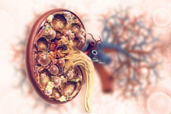 Metoda de testare a probabilităţii de respingere a transplantului de rinichi