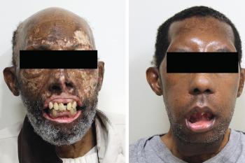 Povestea primului afro-american cu transplant de față