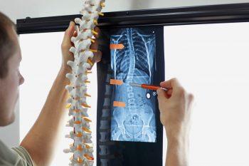 Scolioza la pacientul cu leziune medulară, diagnostic și tratament