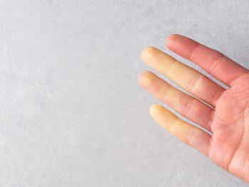 Sindromul Raynaud sau întreruperea fluxului sangvin la extremități